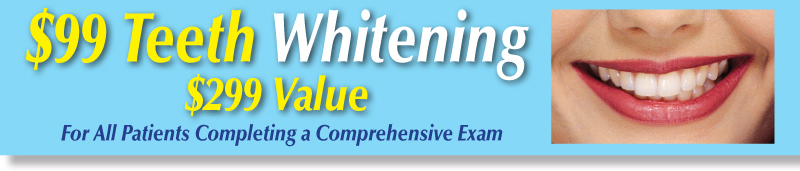 $99-teeth-whitening